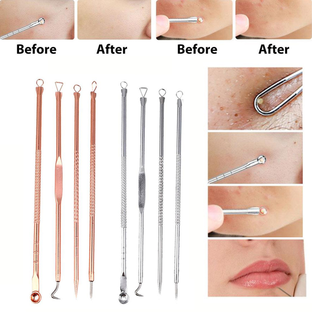 4 Pcs Blackhead Remover Pimple Blemish Comedone Acne Extractor Remover Tool Set Acne Removal Needle
